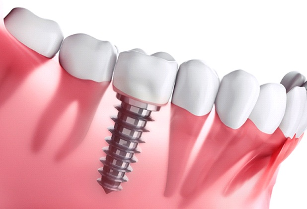 Diagram showing how dental implants in Beverly Hills work